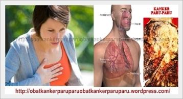 obat kanker paru paru